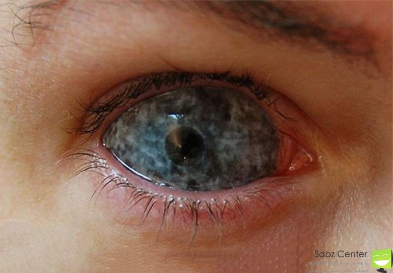 عمل زیبایی رنگ چشم